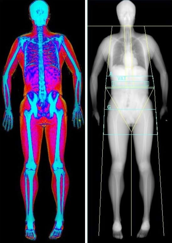 Body composition evaluation with DEXA scan. Muscle, fat and bone