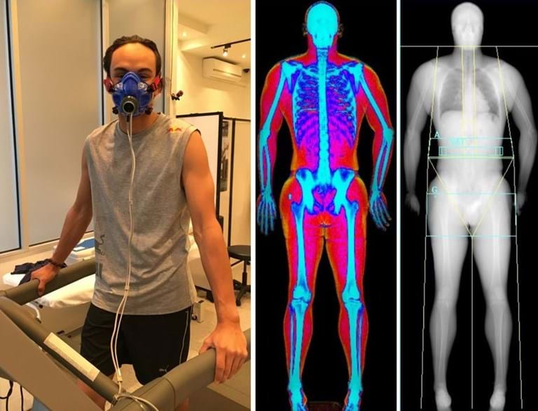 VO2max and DEXA scan at Melbourne Sports and allied health clinic